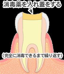 www.shika-sozai.com_illust75_image_0167070003