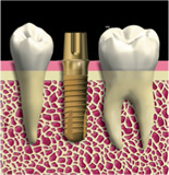 www.kyocera-dental.com_img_m_professional_implant_poi_ex_06