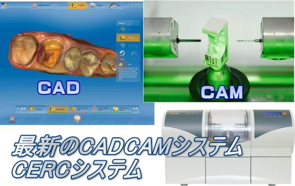 CADCAM1