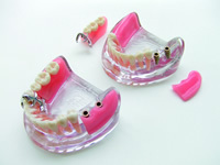 www.kyocera-dental.com_img_m_professional_implant_support_09