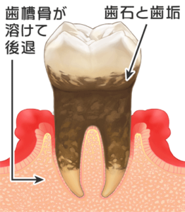 中等度歯周病