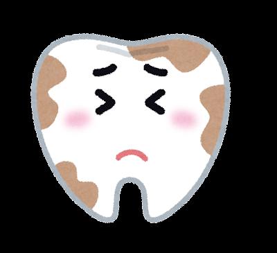 虫歯になりやすいところ